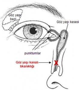 Endoskopik Gözyaşı Kesesi Ameliyatı