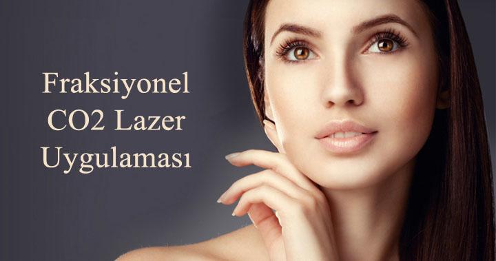 fraksiyonel lazer, co2 fraksiyonel lazer, karbondioksit fraksiyonel lazer, yüz gençleştirme, ameliyatsız yüz germe